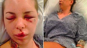 Κατηγορούμενος σε δικαστήριο: «Δεν ήταν βιασμός επειδή η κοπέλα είναι πορνοστάρ»