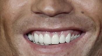Μπορείς να αναγνωρίσεις τον ποδοσφαιριστή μόνο από το χαμόγελο του;