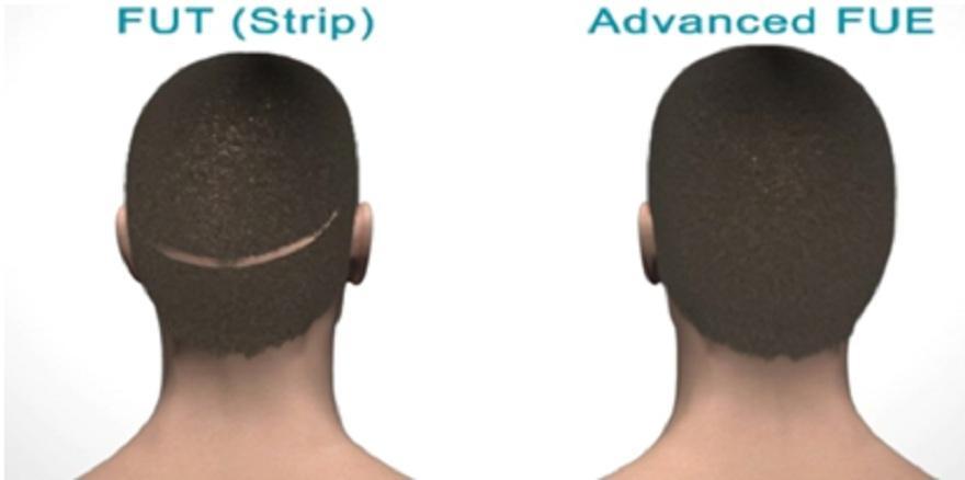 Αποκατάσταση ουλών με τη σύγχρονη μέθοδο μεταμόσχευσης μαλλιών FUE