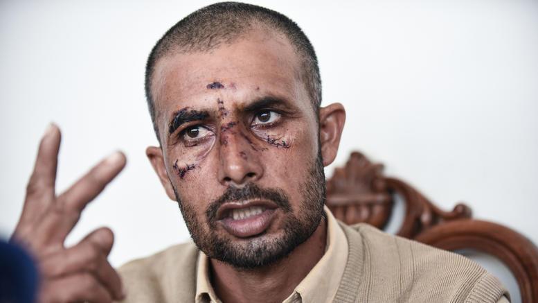 Τρεις συλλήψεις για τη δολοφονική επίθεση στον Ασπρόπυργο