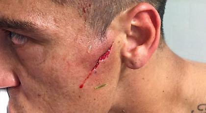 Ανατριχιαστικός τραυματισμός στο πρόσωπο για αμυντικό στη Χιλή