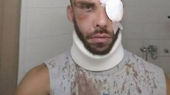 Μεγάλη ανατροπή! Δεν ξυλοκοπήθηκε από ντόπιους ο 30χρονος φοιτητής στο Ρέθυμνο
