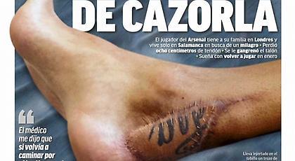 Το δράμα του Καθόρλα και η φωτογραφία-σοκ: «Παραλίγο να χάσω το πόδι μου»! (pic)