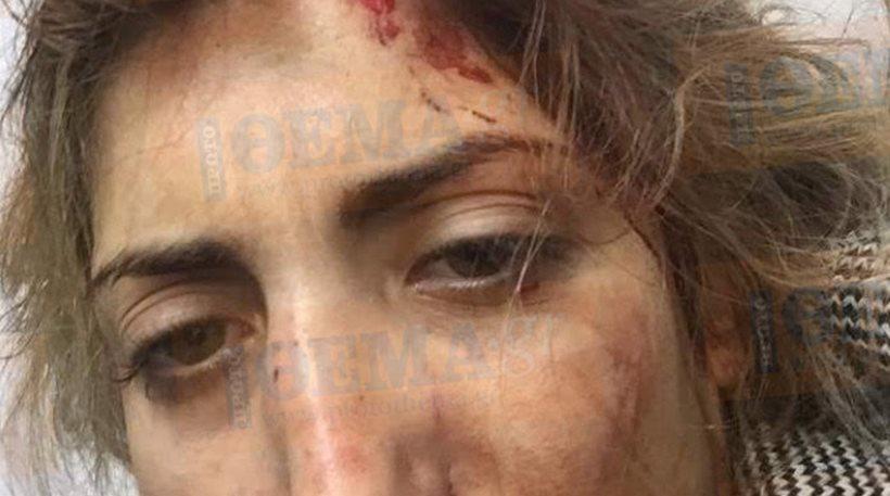 Σοκάρει ηθοποιός της «Παρθένας Ζωής»: «Ο σύντροφός μου με έστειλε στο νοσοκομείο από το πολύ ξύλο»