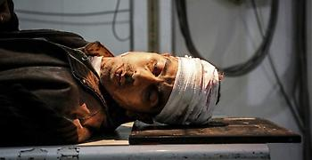 Έντονη ανησυχία του ΟΗΕ για την κλιμάκωση της βίας στην Ανατολική Γούτα