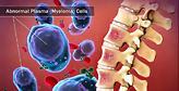 Μέθοδος έγκαιρης διάγνωσης μυελώματος με τεστ αίματος από Κύπριο ερευνητή