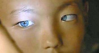 Υπερδυνάμεις: Παιδί εξελιγμένης ανθρώπινης φυλής στην Κίνα κατέχει μία υπεράνθρωπη ιδιότητα