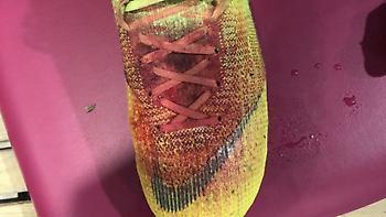 Σοκάρει η φωτογραφία με το ματωμένο παπούτσι του Λούκας Πέρεθ (pic)