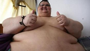 Ο πιο υπέρβαρος άνθρωπος: Έχασε 300 κιλά και έχασε τον τίτλο του (pics&vid)