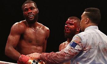 Ο πιο αιματηρός αγώνας πυγμαχίας (pics)