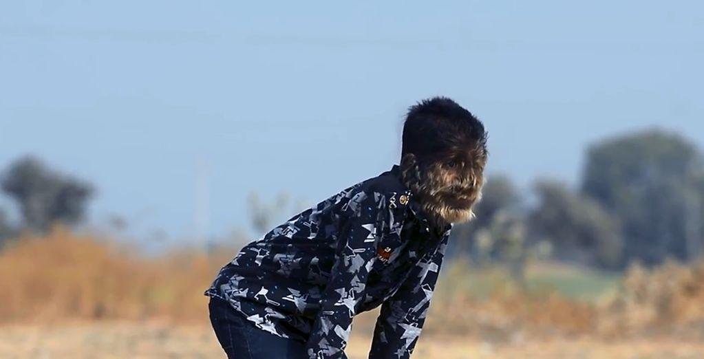 Αγόρι «λυκάνθρωπος»: Η σπάνια ασθένεια από την οποία πάσχει ένα παιδί