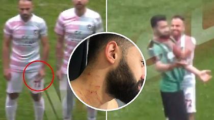 Απίστευτο: Τούρκος παίκτης χαράκωσε αντίπαλο έχοντας κρυμμένο ξυραφάκι (video)