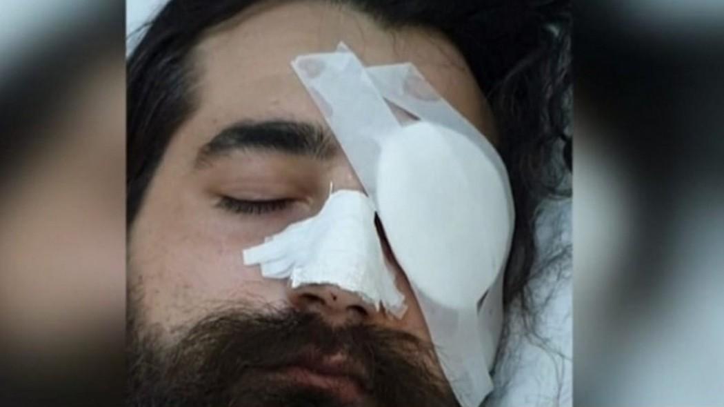 Θύμα ωμής αστυνομικής βίας δηλώνει ο φίλαθλος που έχασε το μάτι του στο ΟΑΚΑ (video)