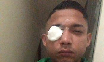 Επεισόδια με τρεις νεκρούς σε αγώνα στην Ονδούρα, τραυματίστηκε ο Ιζαγκίρε