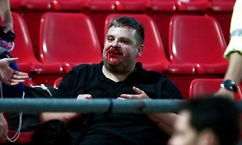 Σοκαριστικές εικόνες με ματωμένα κεφάλια στο Ολυμπιακός-Μπάγερν για το Youth League! (pics)
