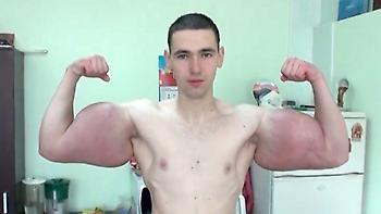 Χειρουργείται για να αφαιρέσει τα παρά φύση μπράτσα του ο «Ρώσος Ποπάι»