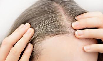 Άγχος: Επιστήμονες επιβεβαιώνουν πως ασπρίζουν απότομα τα μαλλιά και αποκαλύπτουν την αιτία