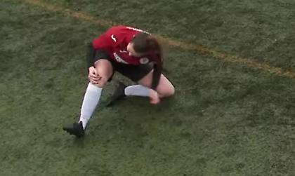 Γυναίκα παθαίνει εξάρθρωση επιγονατίδας, την ξαναβάζει στη θέση της και επιστρέφει στο ματς!