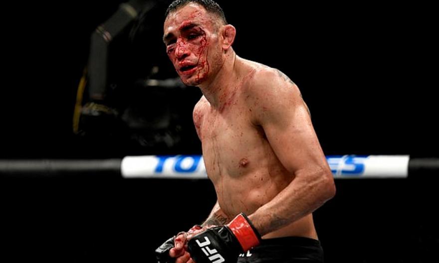 Ο Φέργκιουσον ποζάρει από το νοσοκομείο μετά το κάταγμα στον οφθαλμικό κόγχο!