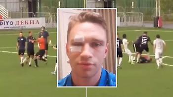 Ο Σιρόκοφ έδειρε διαιτητή γιατί τον απέβαλε! (video)