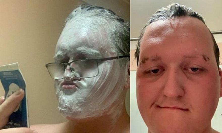 Αυστραλία: Άνδρας έβαλε κρέμα αποτρίχωσης στο πρόσωπό του